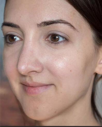 Чистка лица - фото 2
