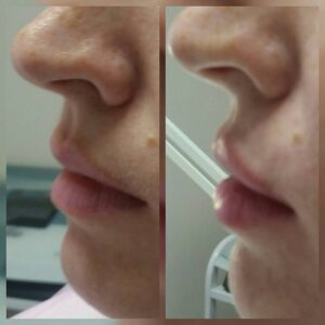Увеличение губ фото 2