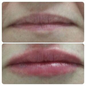 Увеличение губ фото 3