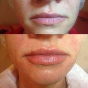 Увеличение губ фото 4