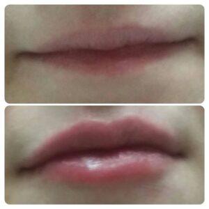 Увеличение губ фото 5