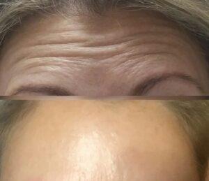 Коррекция морщин фото 3